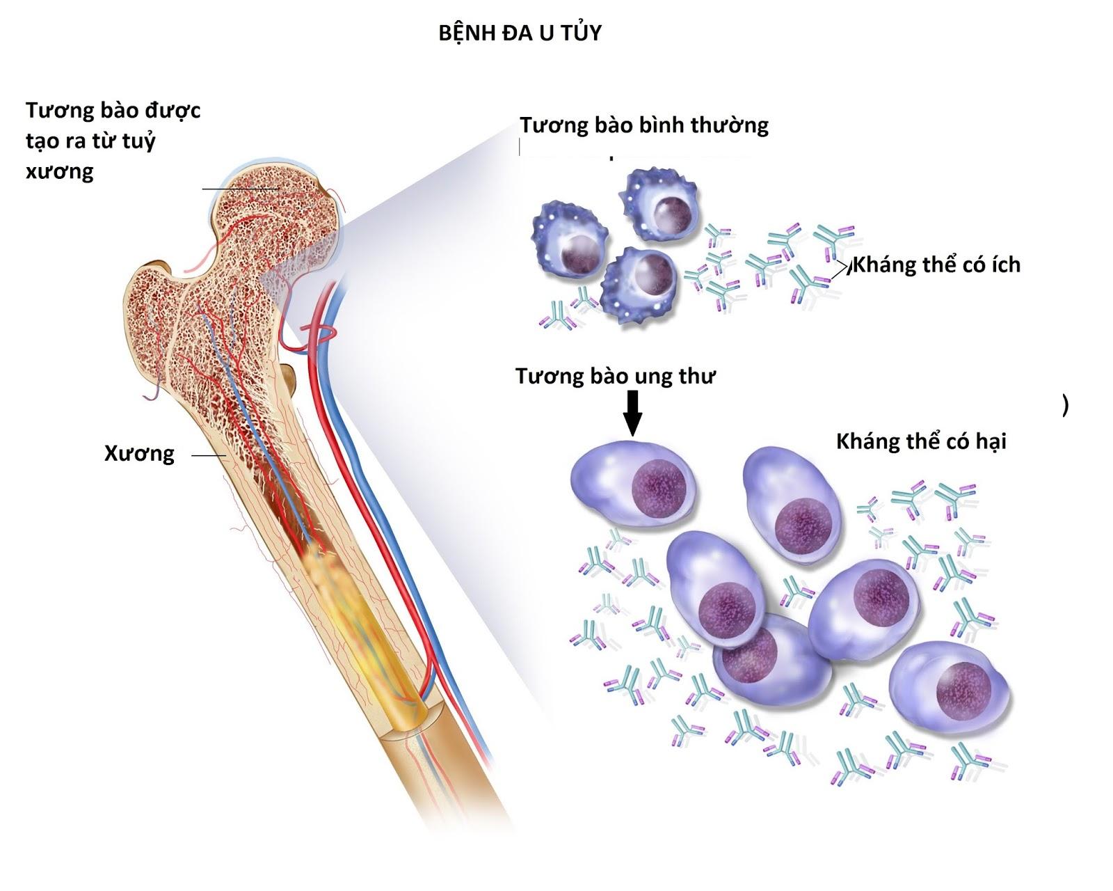 bệnh đa u tủy trong ung thư máu