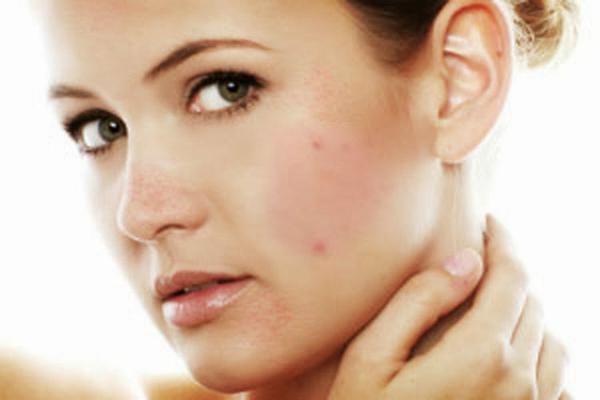 Nguy cơ mắc bệnh ung thư máu ở phụ nữ hay bị dị ứng