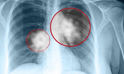 Tình trạng báo động hiện nay của bệnh ung thư phổi