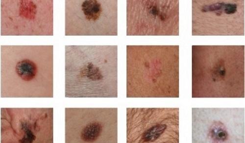 Các hình thái tổn thương da.