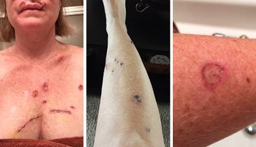 Ung thư da có nguy hiểm không?