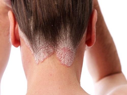 Bệnh ung thư da đầu là căn bệnh rất nguy hiểm.