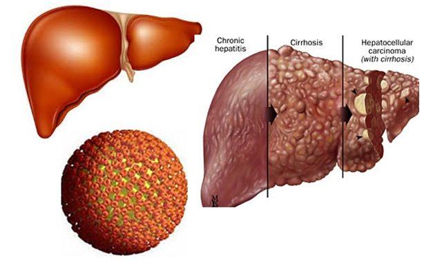 Bệnh ung thư gan không thể cứu vãn
