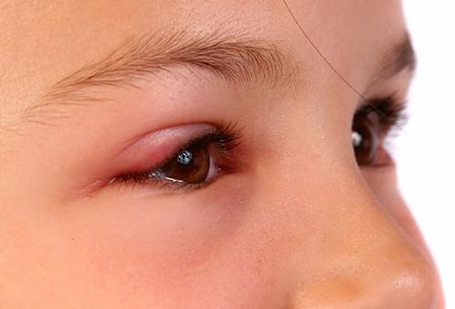 Nguy hiểm của bệnh ung thư mắt
