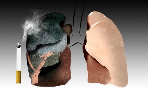 Hầu hết bệnh nhân ung thư phổi được phát hiện khi đã khá muộn