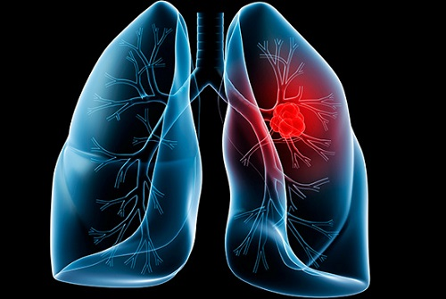 Ung thư phổi có thể ủ bệnh đến 20 năm