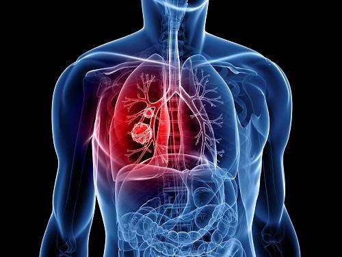 dấu hiệu của bệnh ung thư phổi.