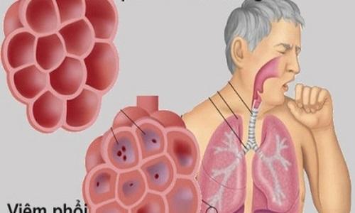 Bệnh ung thư phổi có nguy hiểm không?