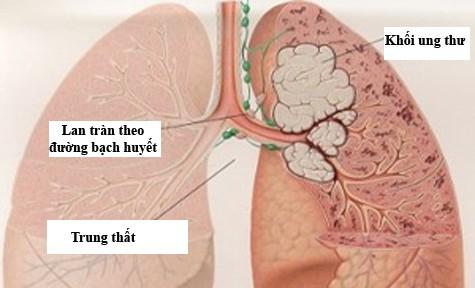 Người mắc bệnh ung thư phổi di căn có tỷ lệ tử vong cao hơn