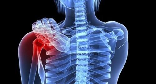 Những biểu hiện của ung thư xương bạn cần biết