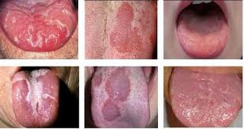 các giai đoạn phát triển bệnh ung thư lưỡi
