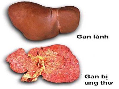 Cách điều trị ung thư gan