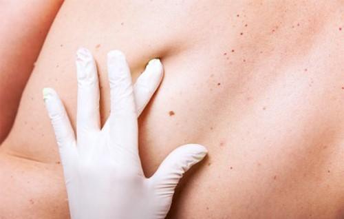 cách tự kiếm tra ung thư da