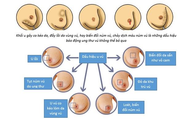 cách ngăn ngừa ung thư vú