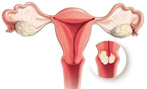Cách nhận biết ung thư tử cung