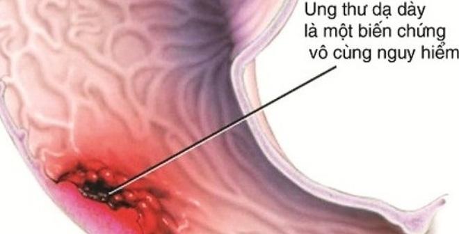 cách phòng tránh bệnh ung thư dạ dày