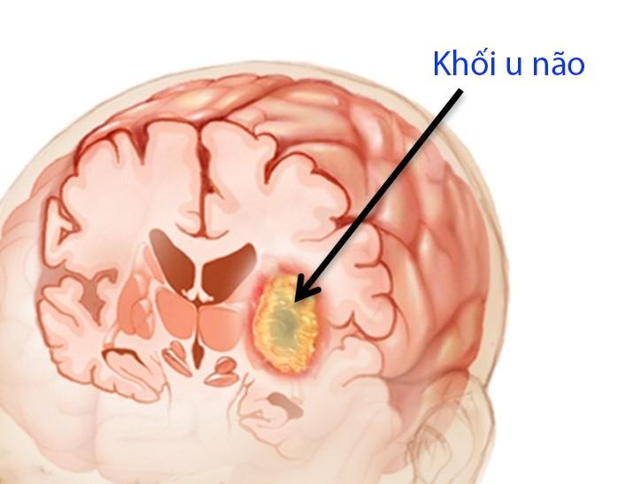 cách phòng tránh ung thư não