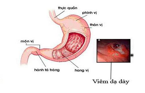 cấp độ của bệnh dạ dày