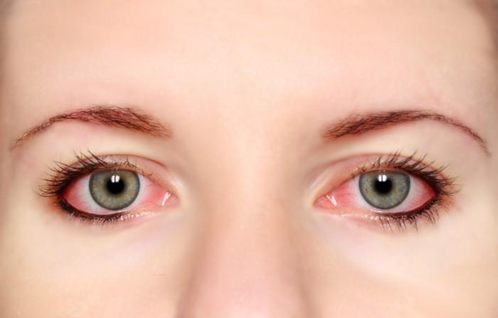 chẩn đoán bệnh qua đôi mắt