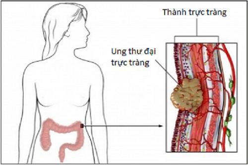 Điều trị ung thư trực tràng thế nào?