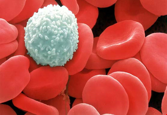 chữa khỏi ung thư máu