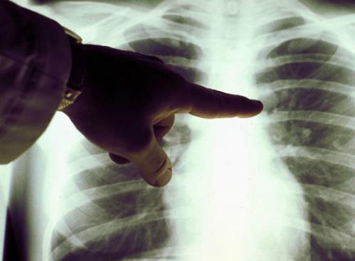 Ung thư phổi – 1 trong những căn bệnh nguy hiểm hàng đầu