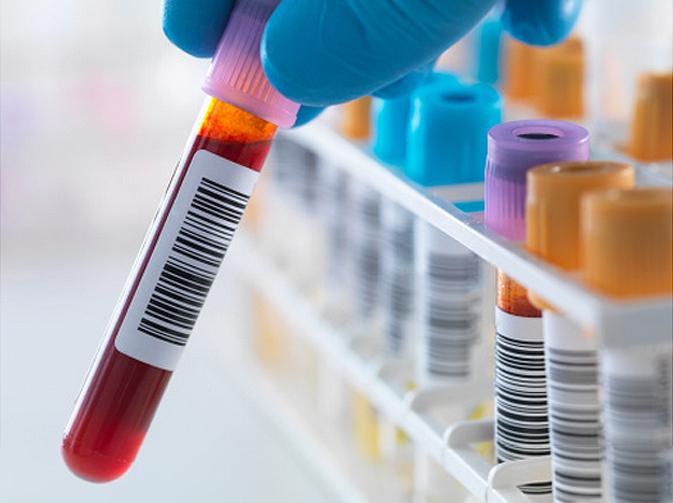 chuẩn đoán và điều trị ung thư