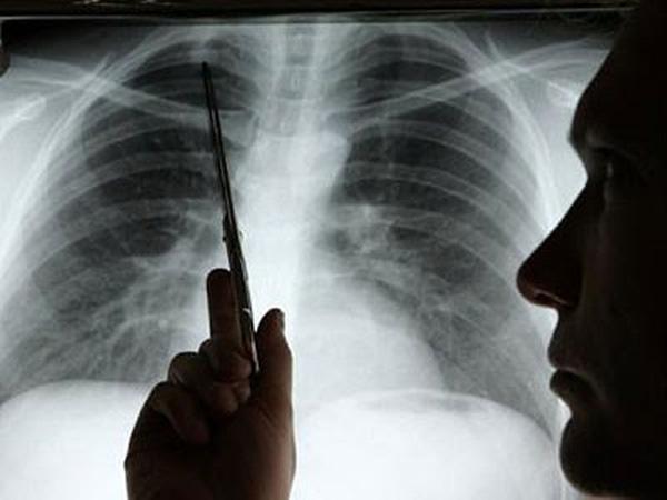 Phát hiện bệnh ung thư phổi sớm để tìm ra phương pháp điều trị bệnh kịp thời
