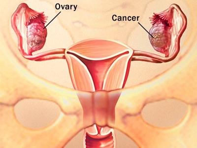 dấu hiệu cảnh báo ung thư phụ khoa ở phụ nữ