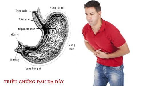 dấu hiệu bệnh dạ dày