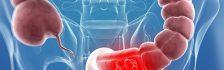 dấu hiệu bệnh viêm đại tràng mạn tính
