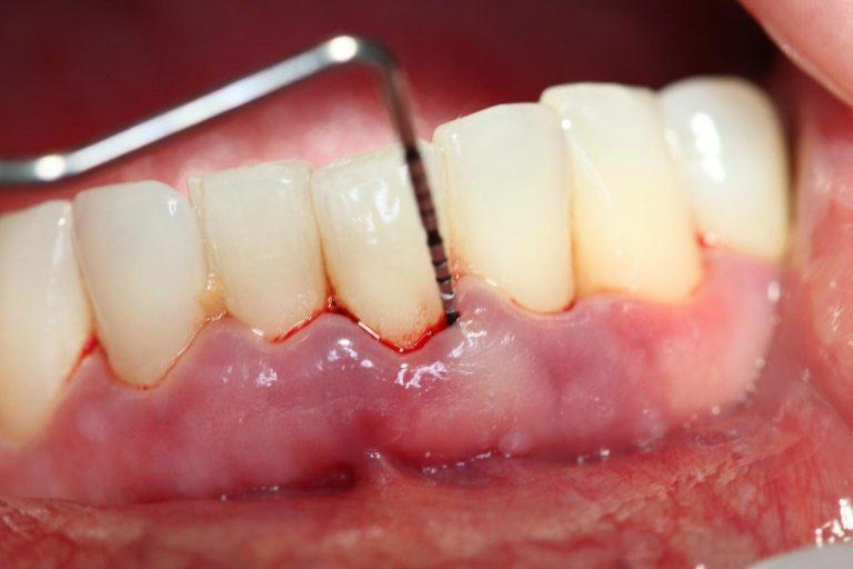 Chảy máu chân răng là dấu hiệu của ung thư gan