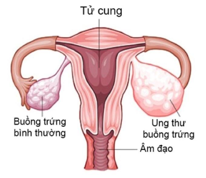 Dấu hiệu nhận biết bệnh ung thư buồng trứng