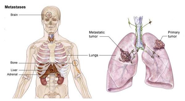 di căn ung thư xương