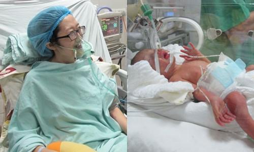 Người mẹ trẻ chịu đựng đau đớn chống lại căn bệnh ung thư để giữ con