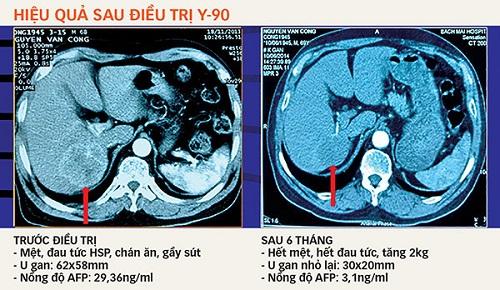 Điều trị ung thư gan bằng hạt vi cầu phóng xạ