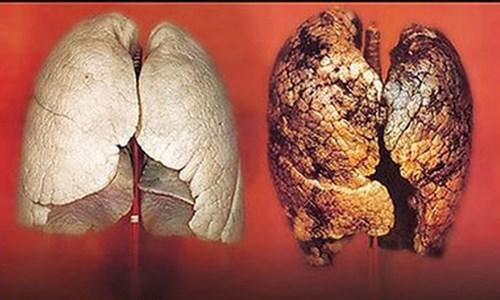 Hình ảnh giữa lá phổi thường và lá phổi bị ung thư