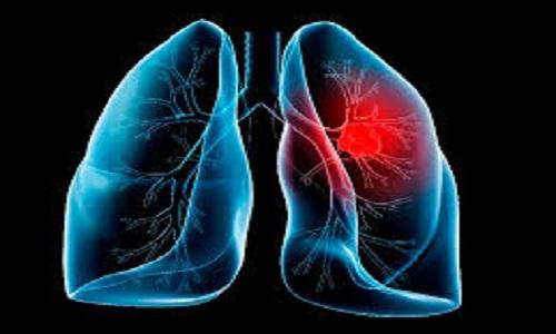 Liệu pháp cho bệnh nhân ung thư phổi