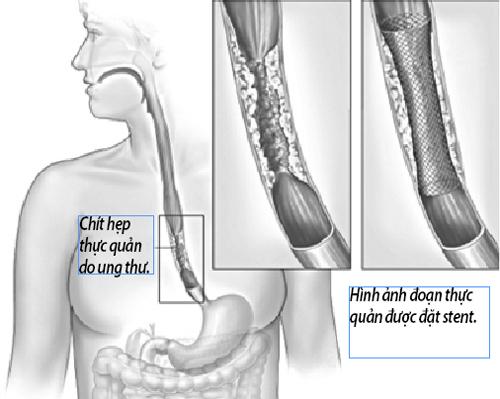 Điều trị ung thư thực quản giai đoạn cuối