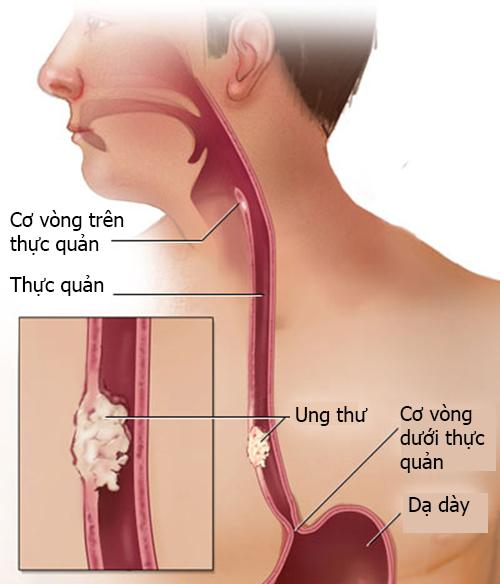 Phương pháp điều trị ung thư thực quản mới