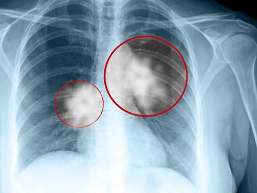 Độ tuổi nào dễ mắc ung thư phổi nhất