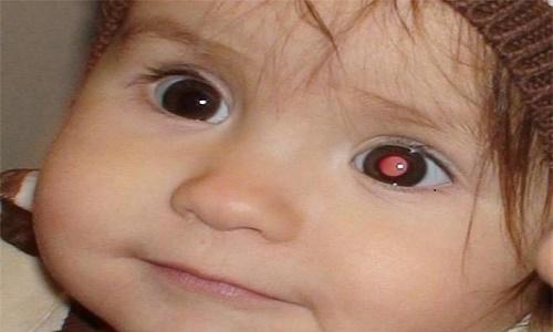 Em bé bị ung thư mắt