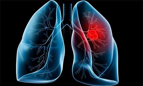 Hút thuốc lá gây ung thư phổi nhanh và nguy hiểm.