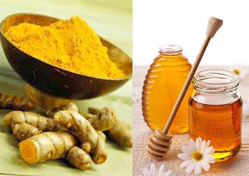 hỗ trợ điều trị đau dạ dày bằng nghệ và mật ong