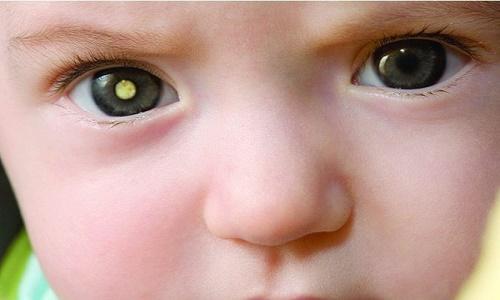 Ung thư võng mạc thường gặp ở trẻ em