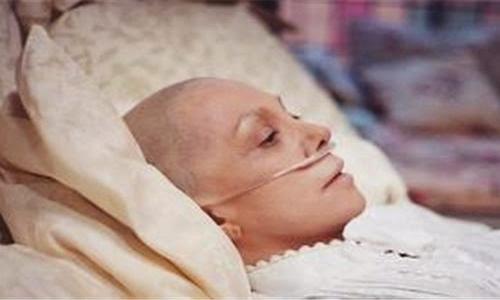 Có nên hóa trị cho bệnh nhân ung thư giai đoạn cuối