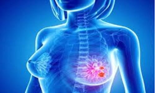 Hạn chế tác dụng phụ sau hóa trị ung thư vú