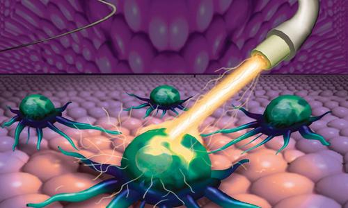 Nghiên cứu thành công kỹ thuật hóa trị ung thư mới