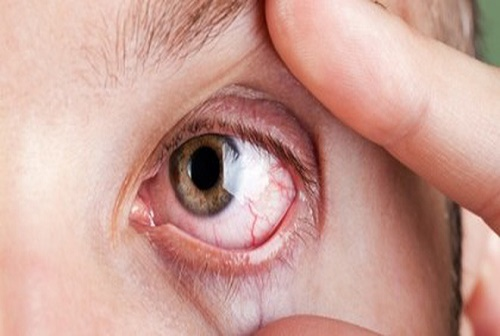 lầm tưởng ung thư mắt với viêm mắt