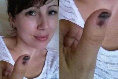 Mắc bệnh ung thư da